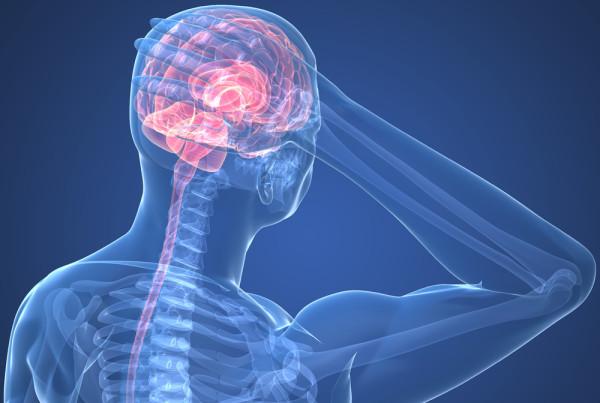 headache-image